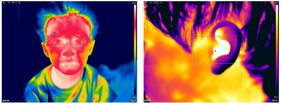 cámara térmica cuerpo humano