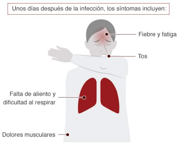 síntomas generales coronavirus